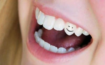 Избелването на зъбите - видове, методи и избелващи пасти за зъби