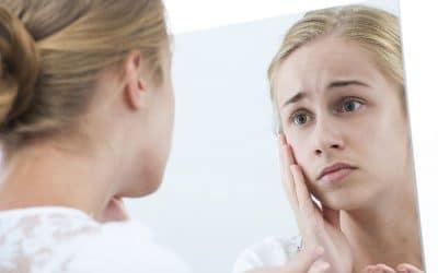 Мъжете или жените страдат по-често от акне?
