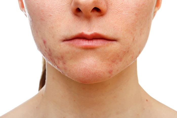 How to conceal acne scars?