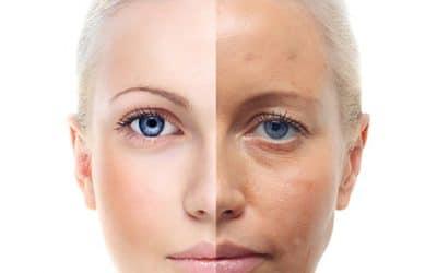 Признаци на стареене на кожата