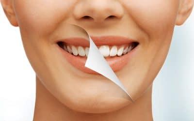 5 мита за избелване на зъбите